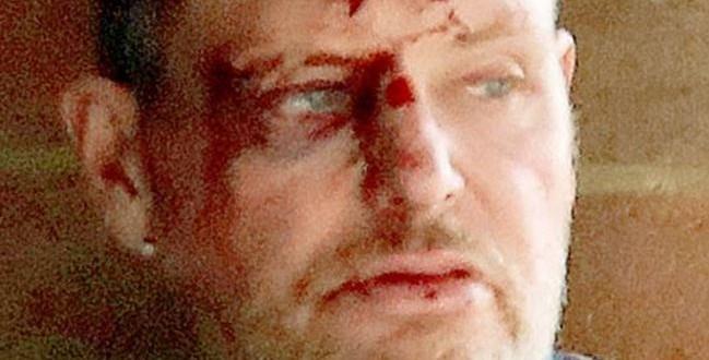 PAUL GASCOIGNE golpeado