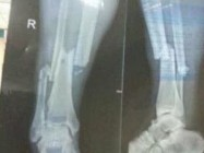 DEMBA BA radiografía
